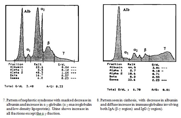 Laboratory Diagnosis Of Protein Abnormalities Ucsd Lab